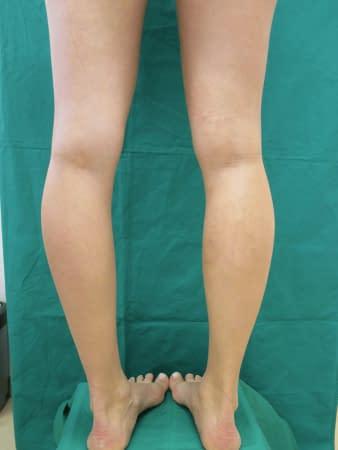 Krampfader nach der Behandlung - sie ist nicht mehr sichtbar